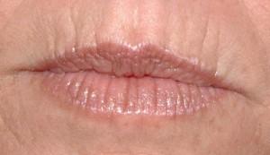 омоложение возрастных губ| Healthface