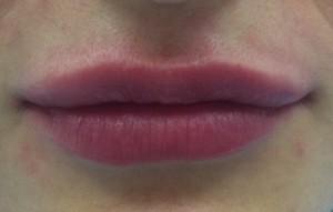 отек губ после процедуры | Healthface