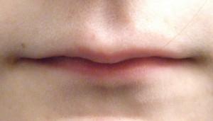 тонкие губы увеличить гиалуроновой кислотой | healthface
