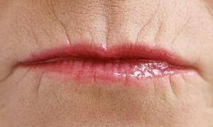 морщины вокруг губ | healthface