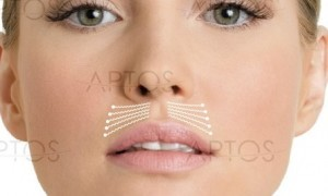 нити над верхней губой | healthface