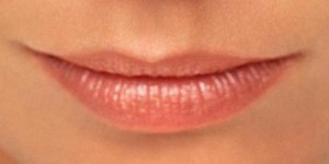 коррекция асимметрии губ | Healthface