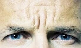 межбровные морщины, мужская косметология | healthface