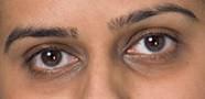 коррекция слезной борозды, темных кругов род глазами филлерами | Healthface