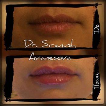 Контур и объём губ