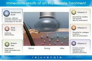 Intraceuticals кислородная терапия | Healthface